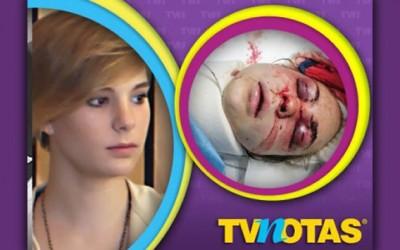 Nieta de Cantinflas brutalmente golpeada por su esposo